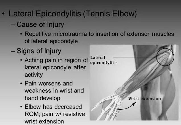 Symptoms of Tennis Elbow — PT Master Guide