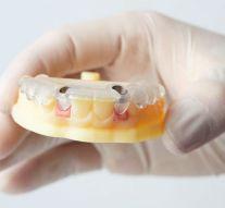 Dentistas en Parla exponen los beneficios de los implantes dentales