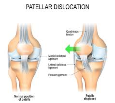Dislocation of the Kneecap