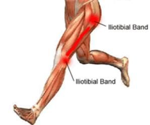 iliotibial-band