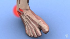 Ankle instability: Turning your ankle walking in the backyard?