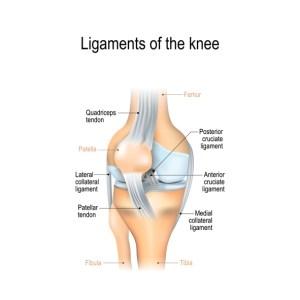 Knee Sprain – What Is It?