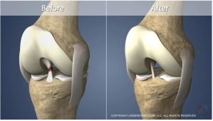Torn ACL Reconstruction – Hamstring Graft