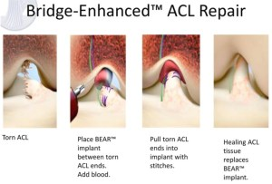 FDA authorizes marketing of ACL Implant