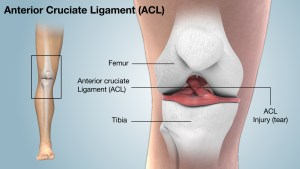Ask The Doctor: ACL Tears — Your Treatment Options