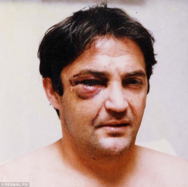 Gary Mabbutt injury