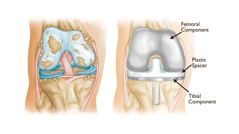 Total Knee Replacement | The Best Operation for Knee Osteoarthritis