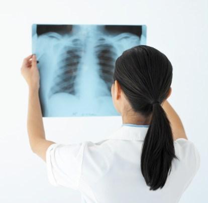 lung cancer women