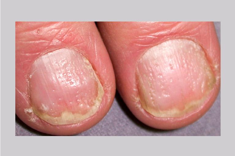 color of fingernail