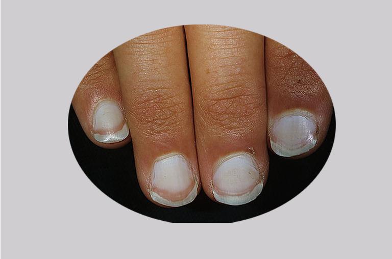 dark fingernails vitamin deficiency