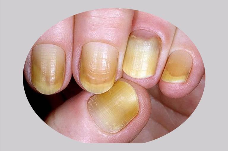 nail diseases chart