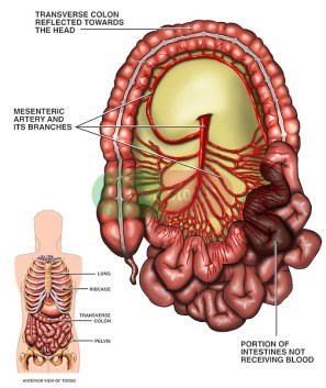 Image result for intestinal blood supply