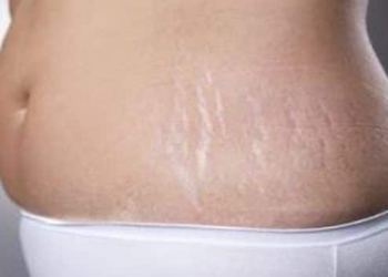 5 effective home remedies to remove stretch marks