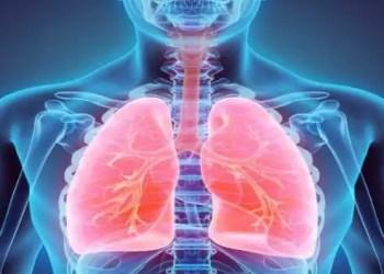 idiopathic pulmonary fibrosis, Chronic obstructive pulmonary illness,