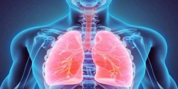 idiopathic pulmonary fibrosis, Chronic obstructive pulmonary illness,