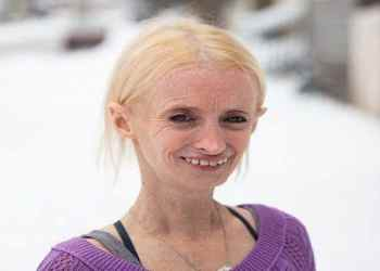 New possible treatment may help patients suffering from Progeria   TheHealthSite.com