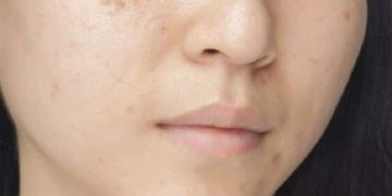 Acne scars - know how to deal with it naturally | TheHealthSite.com