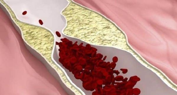 peripheral artery disease - tips to avoid this condition | TheHealthSite.com