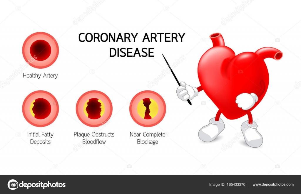 Heart Character With Coronary Artery Disease Info Graphic