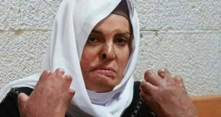 Isaa Jaabis, the face of normalization, medically neglected in an Israeli prison, Picture soure: Middle East Monitor