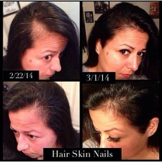 HSN Before & After
