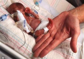 feto aborto