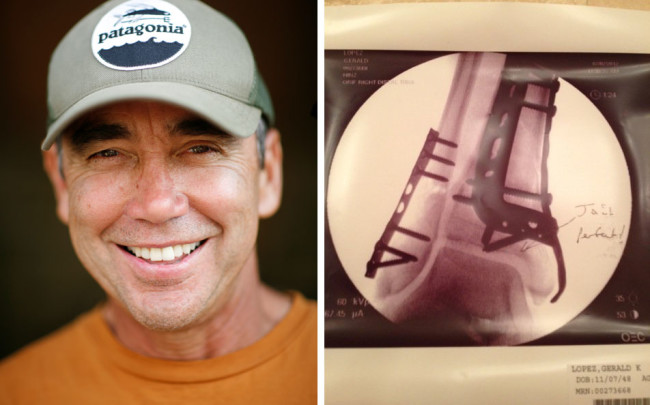 gerry's tibia and pic