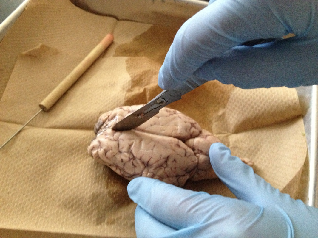 Lab Sheep Brain Dissection