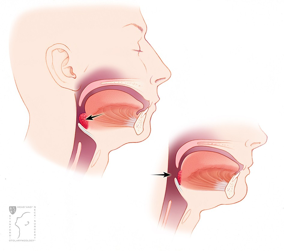 Enlarged Lingual Tonsils