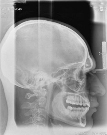 cranio-bite1