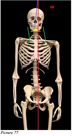 asymmetry skull skeleton