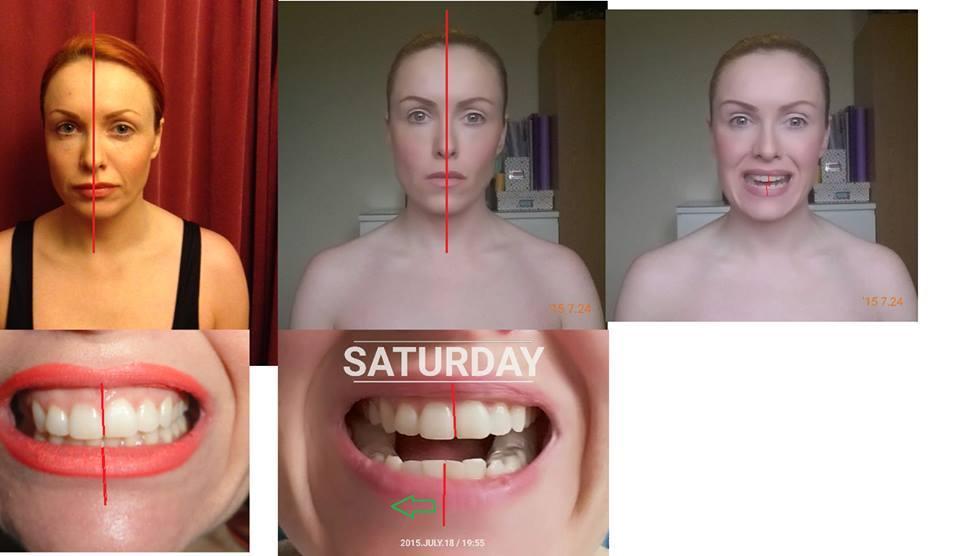 cheekbones develop symmetry