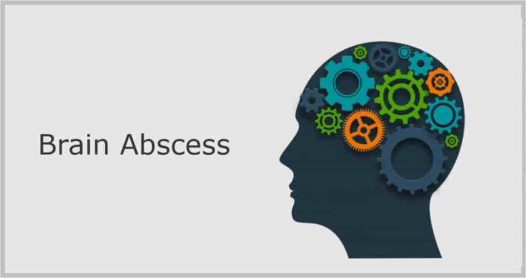 brain abscess mri