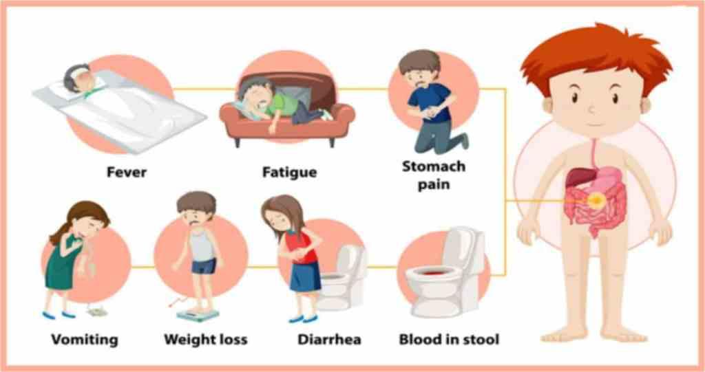 crohn's disease and covid