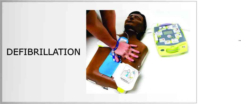 why is defibrillation important