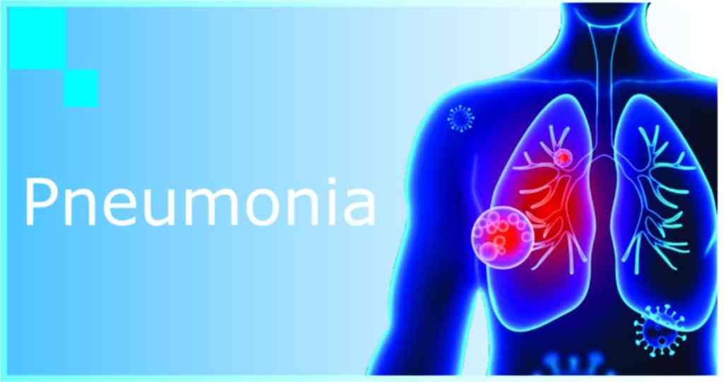 how to treat covid pneumonia