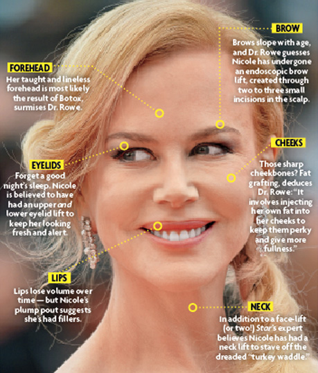 Wtface Nicole Kidman Ditched More Than Just Her 90s