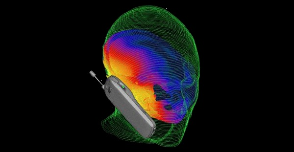 5G ROLL-OUT MUST BE STOPPED BY ANY MEANS NECESSARY  Celular-ondas-cerebro-1