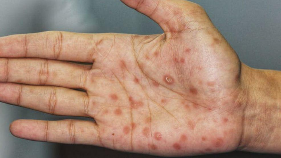 Resultado de imagem para syphilis