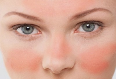 Cómo eliminar las venitas rojas de tu rostro   mujerhoy.com