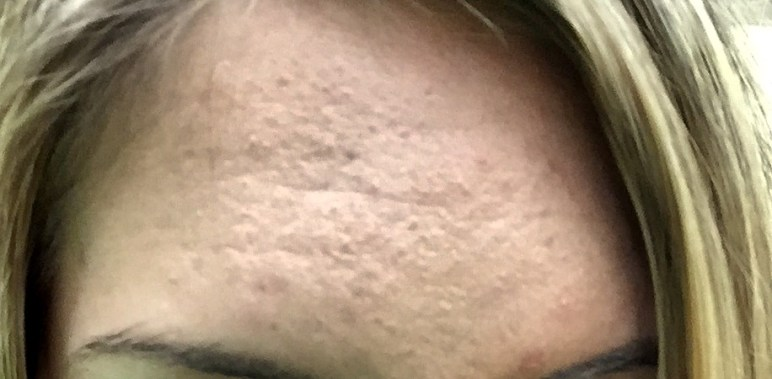 What is subclinical acne