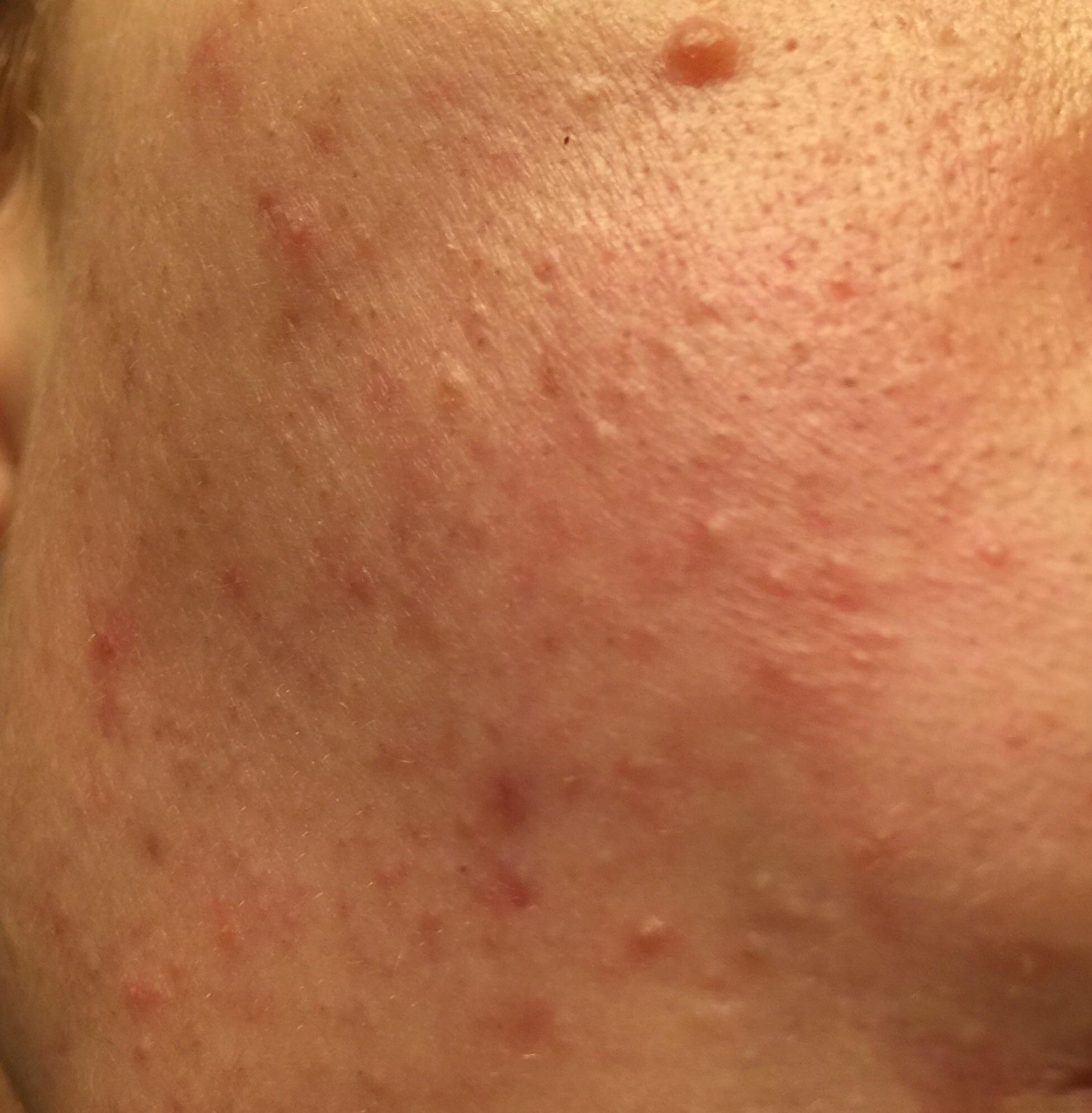Benzoyl Peroxide Face Cream