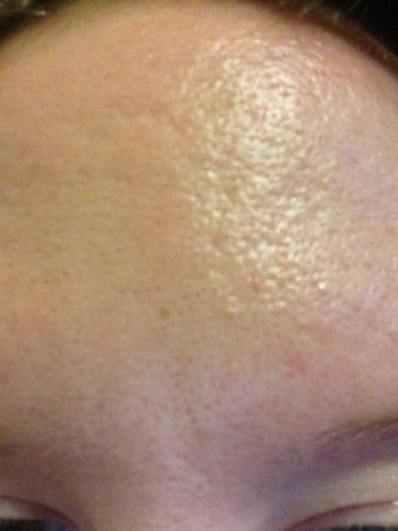 Is There Any Treatment For My Skin Texture And Scaring