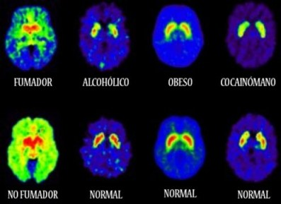 Efecto de varias drogas en el cerebro
