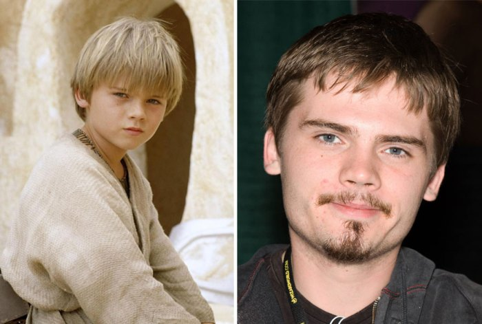 Jake Lloyd As Young Anakin Skywalker, 1999 And 2015