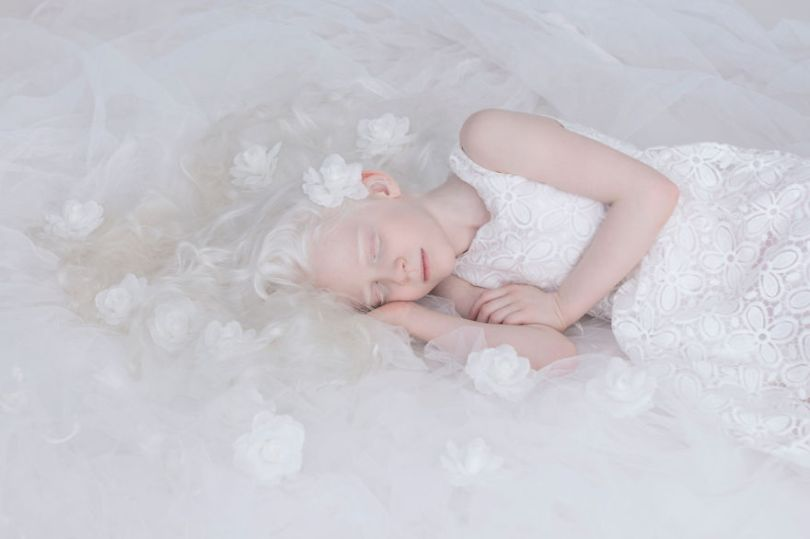 IMG 0216 s 582c4306013dd  880 - A beleza dos albinos