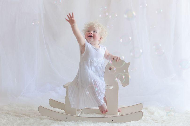IMG 0527 s 582c4310c75c4  880 - A beleza dos albinos