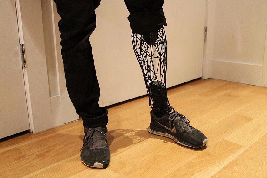 prosthetics-leg-3d-printed-titanium-william-root-8