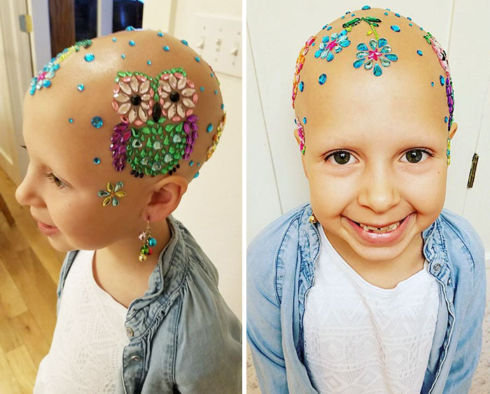 girl-alopecia-crazy-hair-day-gianessa-wride-12