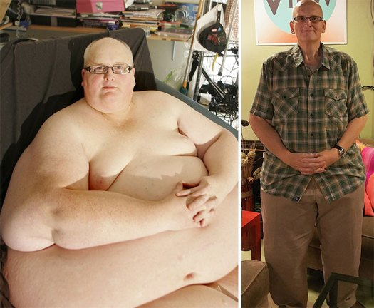 World's Fattest Man After Losing +700 Lbs